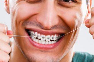 تقويم الاسنان تعرف علي انواعه ومميزاته وعيوبه والعناية بالأسنان بعد التقويم