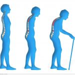 أعراض هشاشة العظام  وطرق علاجها
