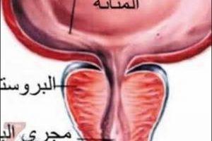 علاج البروستاتا وأسباب تضخمها وتأثيرها على حياة الرجل