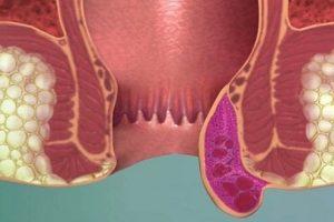 البواسير الخارجية وعلاجها طبيا وفي المنزل