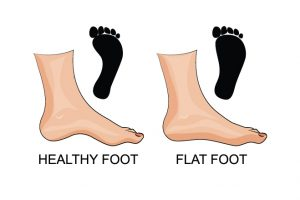 هل تعلم للاطفال الصغار حقائق مدهشة عن قدميك