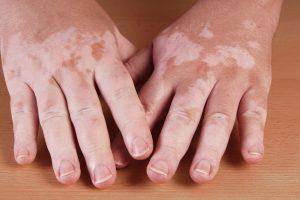 علاج البهاق بالأعشاب وأعراض هذا المرض وتعريفه