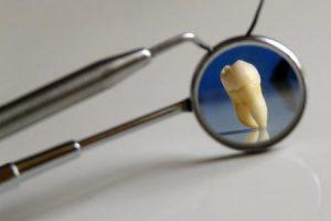 تلبيس الاسنان معلومات مفيدة ونصائح ذهبية