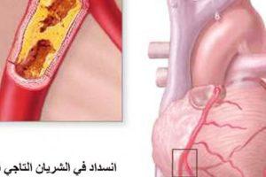 اعراض مرض القلب والمشاكل المترتبة عليها وطرق الوقاية من الاصابة بها
