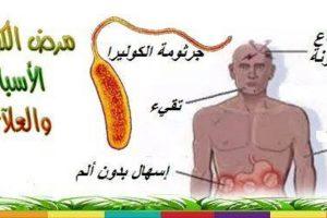 مرض الكوليرا وأسبابه وكيفية علاجه والوقاية منه