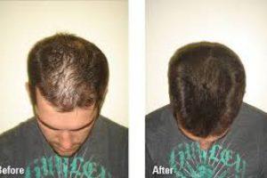 تكثيف الشعر بالطرق الطبيعية دون اللجوء لطبيب