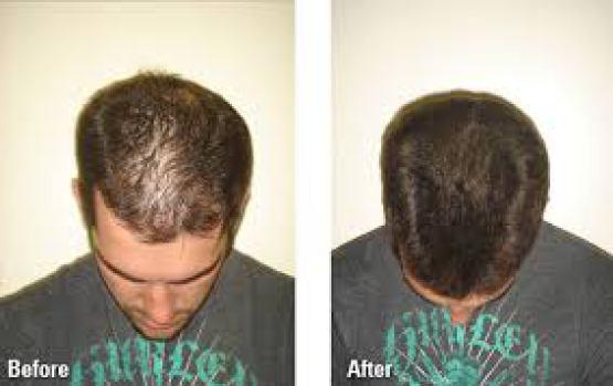 تكثيف الشعر