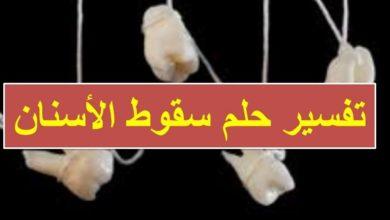 تفسير الحلم بسقوط الاسنان في المنام