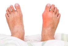 معلومات طبية عن مرض النقرس
