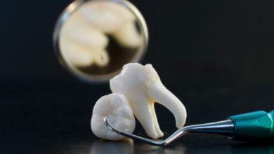 تفسير حلم سقوط الأسنان والضروس للعازب
