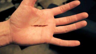 حلم قطع يد طفل