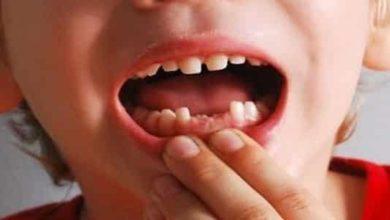 تفسير سقوط الاسنان في المنام