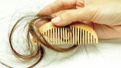 حلم سقوط الشعر