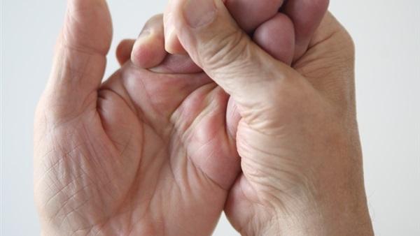المصاب بالتهاب المفاصل الروماتويدي ليس لديه القدرة على تحريك اليد بسهولة