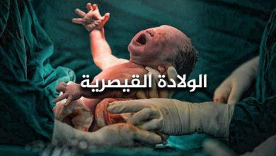 معلومات عن الولادة القيصرية