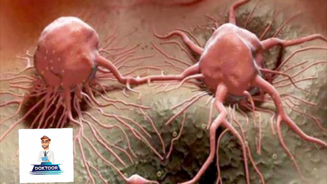 خلايا سرطانية
