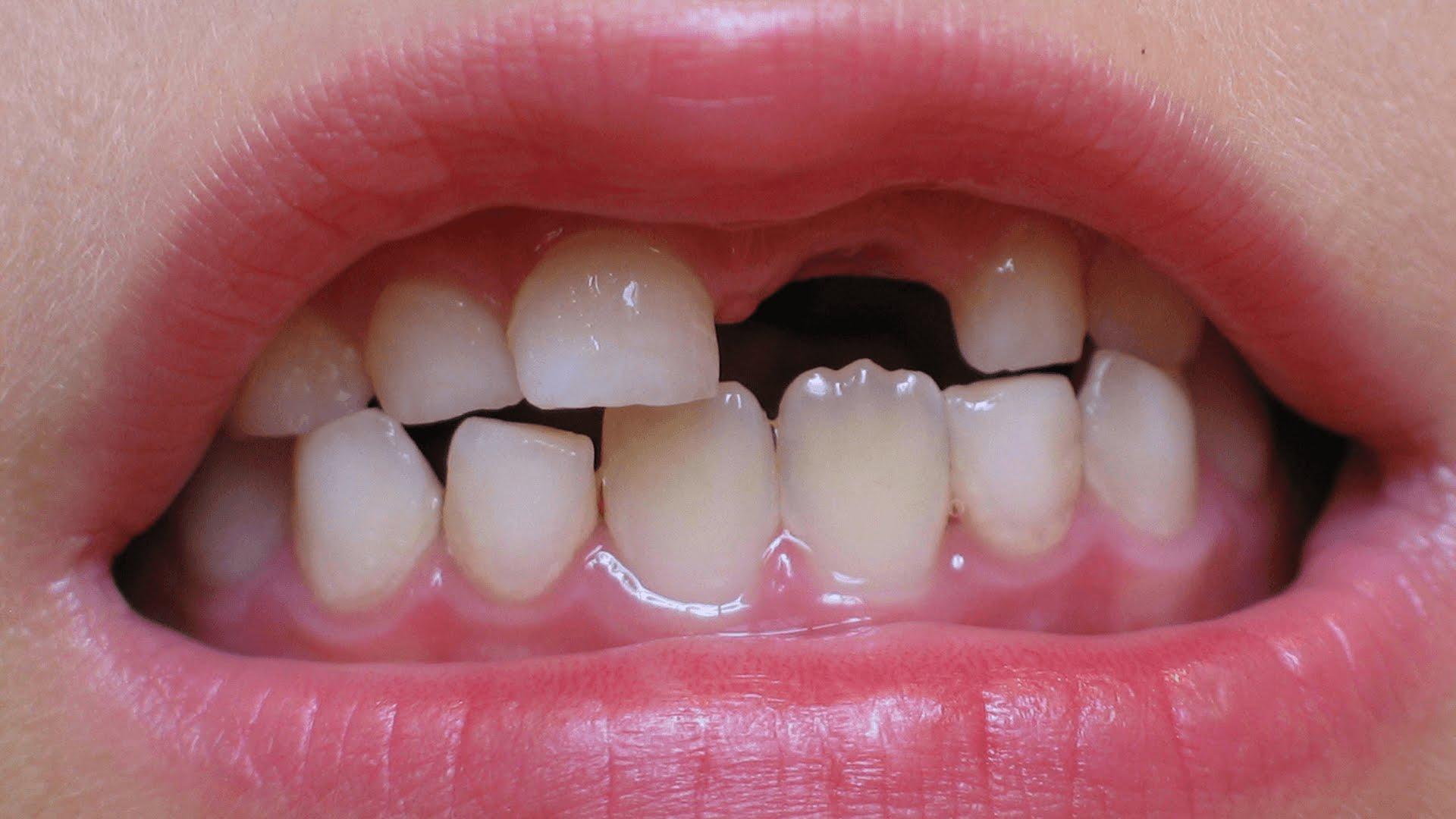 سقوط الأسنان في المنام