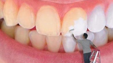 كيف يتم تبيض الأسنان