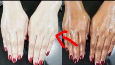 صورة توضح الفرق قبل و بعد تبييض اليد.