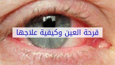 علاج قرحة العين