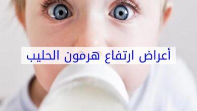 اعراض ارتفاع هرمون الحليب