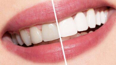 رؤية الأسنان في المنام