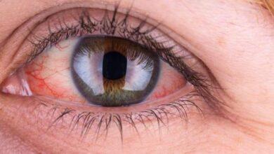 اعراض_ضغط_العين