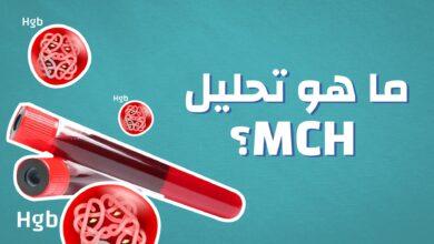 معلومات عن تحليل mch