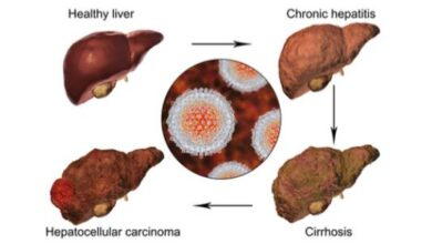 مراحل تضخم الكبد.