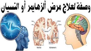 وصفة لعلاج مرض الزهايمر