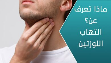 معلومات حول التهاب اللوزتين