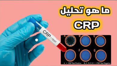 ماهو تحليل crp