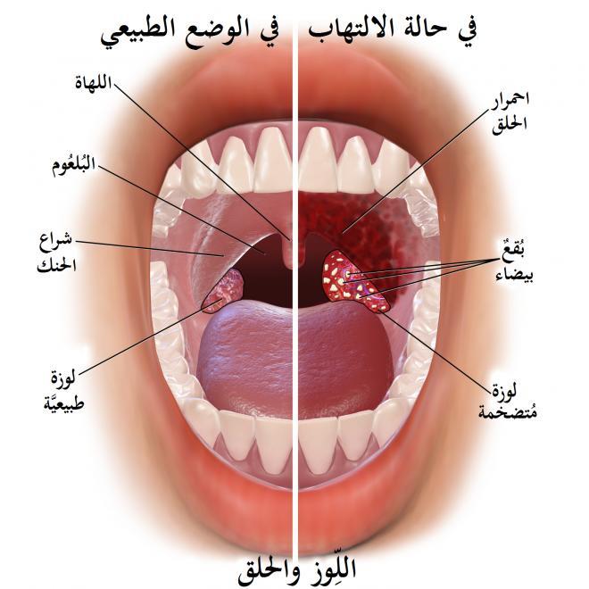 التهاب الحلق