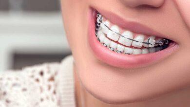 تقويم اسنان