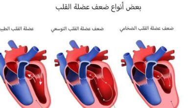 ما هو علاج ضعف عضلة القلب