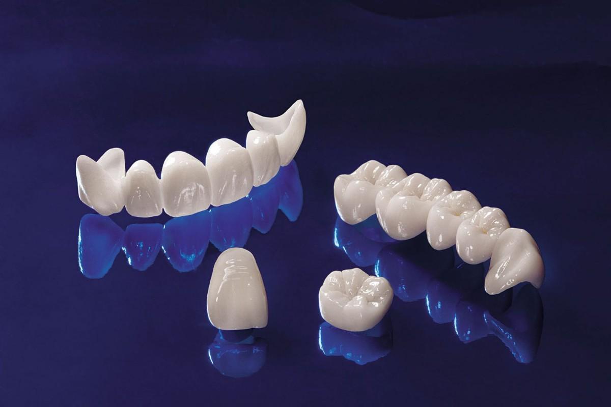 سقوط الأسنان