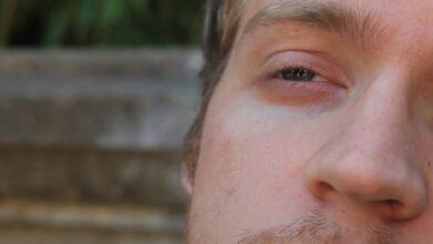 اسباب نبض العين