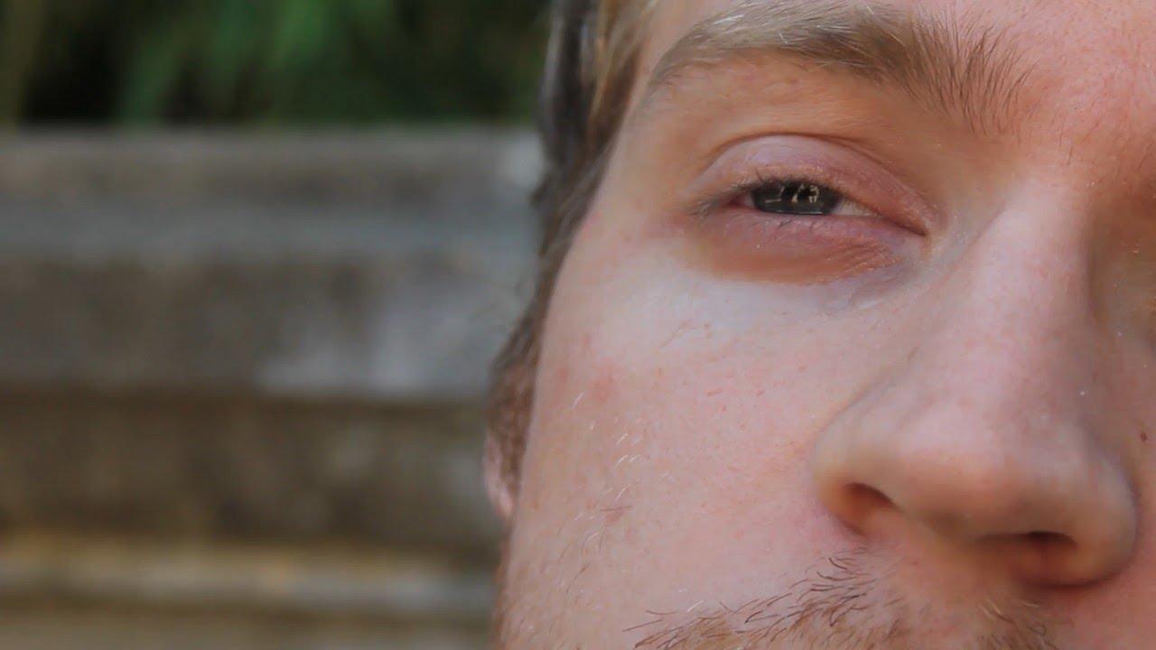 اسباب نبض العين وعلاجه