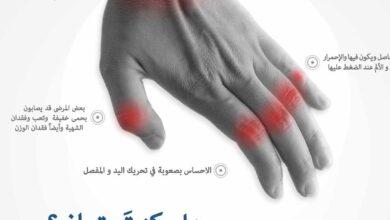الروماتيزم و إلتهاب المفاصل في اليدين.