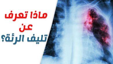 حول معرفة مشاكل الرئة