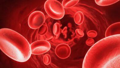 ارتفاع الحديد في الدم