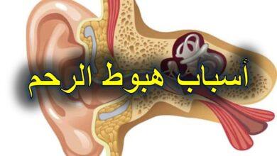أسباب هبوط الرحم