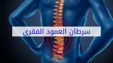 أمراض العمود الفقري