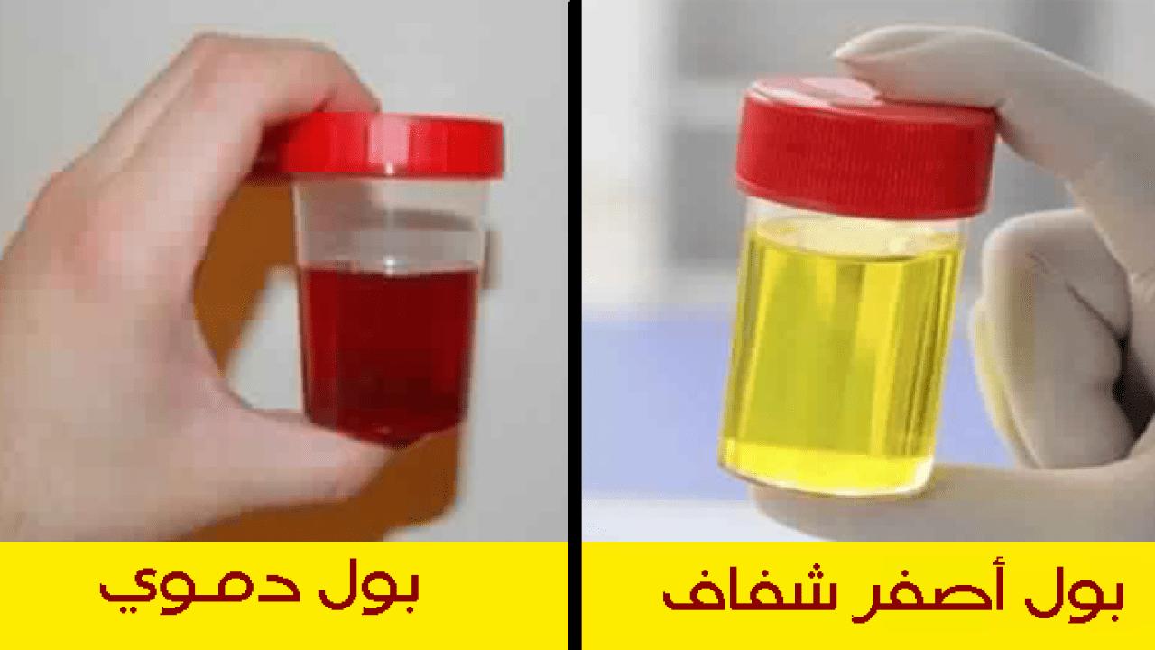 الفرق بين البول العادي و البول الدموي.