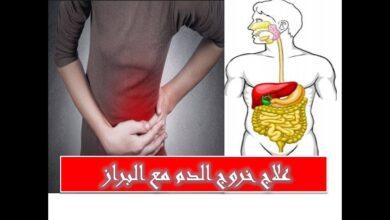 علاج خروج الدم مع البراز