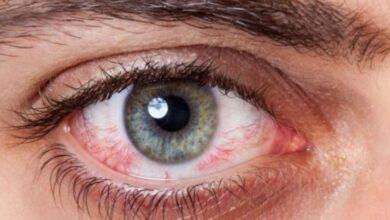 عين مصابة باعتلال الشبكية