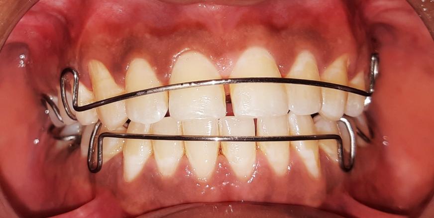 تقويم معدني متحرك للأسنان