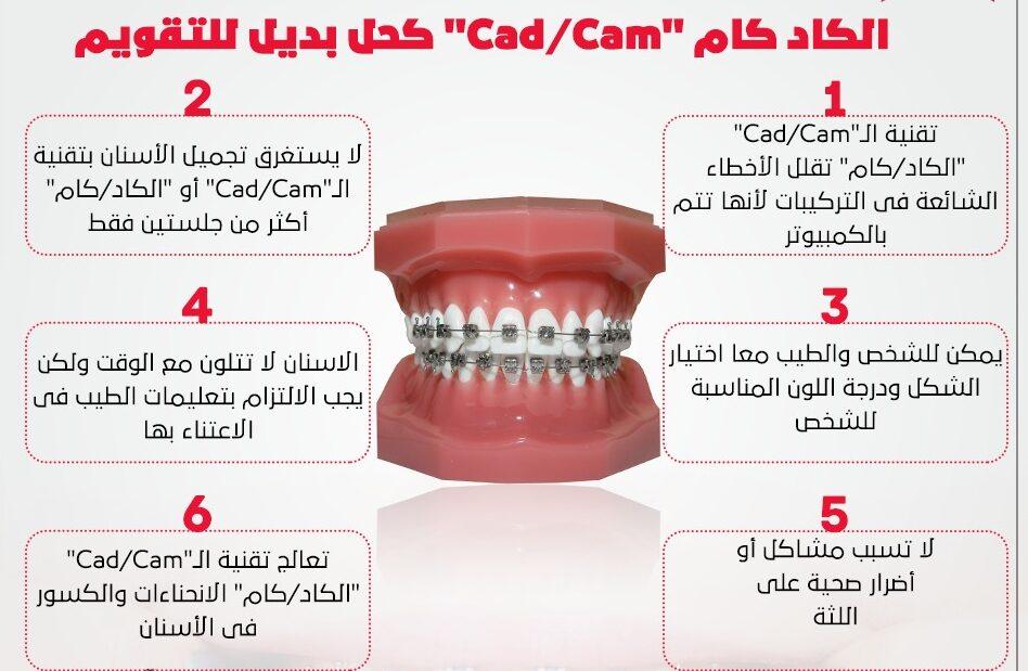 6 معلومات عن تقويم الأسنان