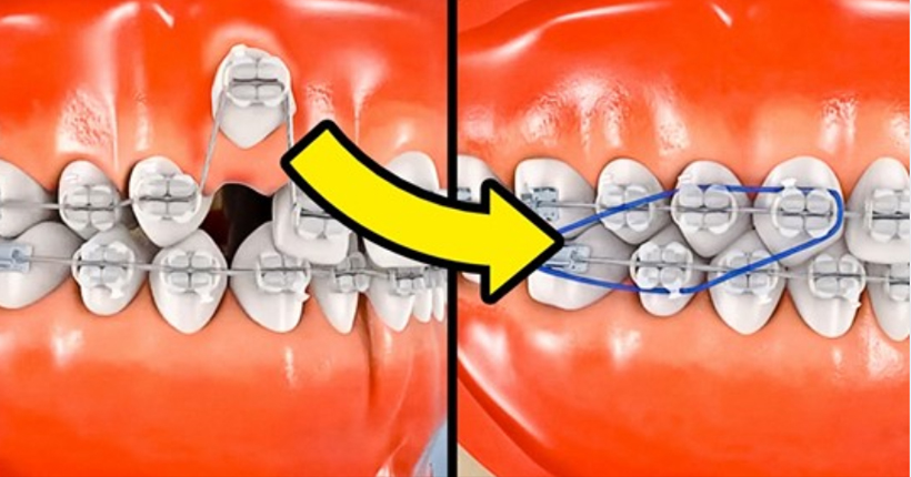 شكل التقويم بالأسنان